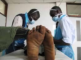 Lilongwe Circumcise 100,000 Men